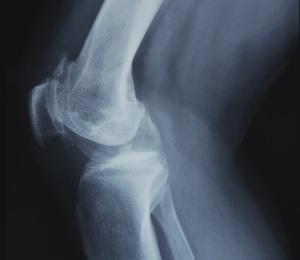 knee-fracture